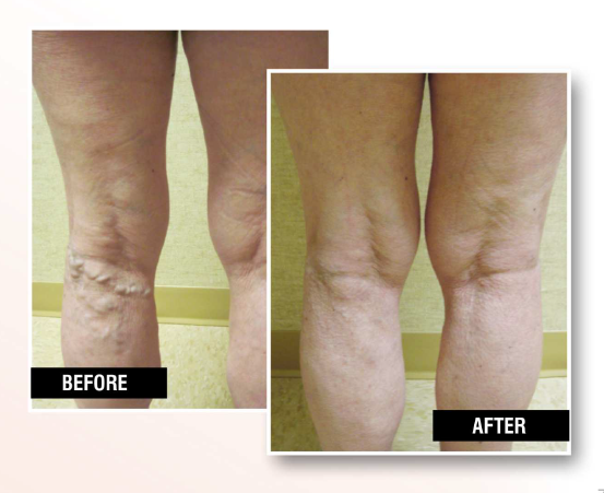 """Varicose Veins