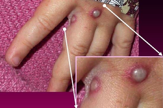 monkeypox pustules
