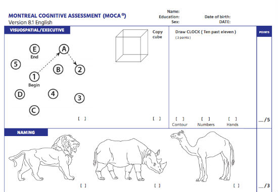 What is Montreal Cognitive Assessment MoCa Test